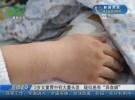 """3岁女童胃中有大量头发  疑似患有""""异食癖"""""""